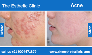 acne-treatment-before-after-photos-mumbai-india-1 (4)
