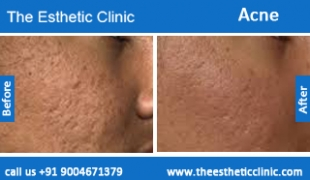 acne-treatment-before-after-photos-mumbai-india-1 (2)
