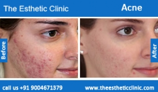 acne-treatment-before-after-photos-mumbai-india-1 (5)