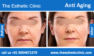 Anti-Aging-treatment-before-after-photos-mumbai-india-1 (4)