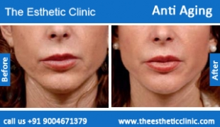 Anti-Aging-treatment-before-after-photos-mumbai-india-1 (2)