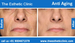 Anti-Aging-treatment-before-after-photos-mumbai-india-1 (3)