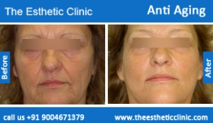 Anti-Aging-treatment-before-after-photos-mumbai-india-1 (5)