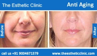 Anti-Aging-treatment-before-after-photos-mumbai-india-1 (6)