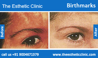 Birthmarks-removal-treatment-before-after-photos-mumbai-india-1 (4)