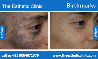 Birthmarks-removal-treatment-before-after-photos-mumbai-india-1 (5)