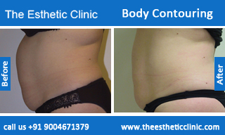 Body-Contouring-treatment-before-after-photos-mumbai-india-1 (1)