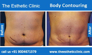 Body-Contouring-treatment-before-after-photos-mumbai-india-1 (2)
