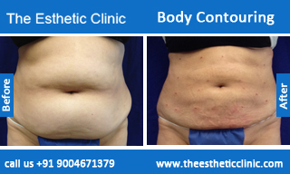 Body-Contouring-treatment-before-after-photos-mumbai-india-1 (3)