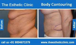 Body-Contouring-treatment-before-after-photos-mumbai-india-1 (5)