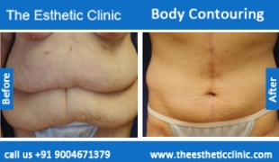Body-Contouring-treatment-before-after-photos-mumbai-india-1 (4)