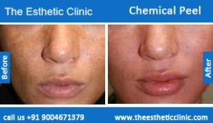Chemical-Peel-treatment-before-after-photos-mumbai-india-1 (5)