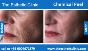 Chemical-Peel-treatment-before-after-photos-mumbai-india-1 (6)
