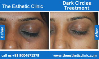 Dark-Circles-treatment-before-after-photos-mumbai-india-1 (2)