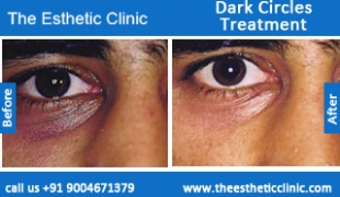 Dark-Circles-treatment-before-after-photos-mumbai-india-1 (1)