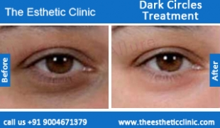 Dark-Circles-treatment-before-after-photos-mumbai-india-1 (3)