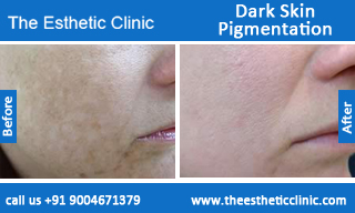 Dark-Skin-Pigmentation-treatment-before-after-photos-mumbai-india-1 (2)
