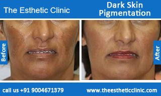 Melasma Treatment India, Best Treatment for