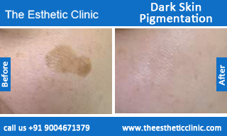 Dark-Skin-Pigmentation-treatment-before-after-photos-mumbai-india-1 (6)