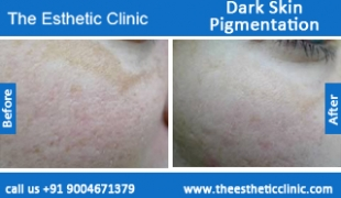 Dark-Skin-Pigmentation-treatment-before-after-photos-mumbai-india-1 (3)