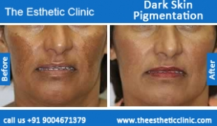 Dark-Skin-Pigmentation-treatment-before-after-photos-mumbai-india-1 (5)