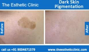 Dark-Skin-Pigmentation-treatment-before-after-photos-mumbai-india-1 (6)