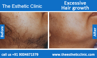 Excessive-Hair-growth-treatment-before-after-photos-mumbai-india-1 (6)