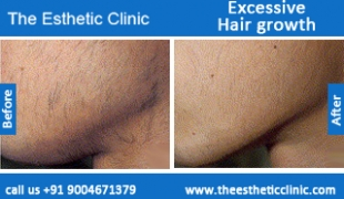 Excessive-Hair-growth-treatment-before-after-photos-mumbai-india-1 (1)