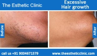 Excessive-Hair-growth-treatment-before-after-photos-mumbai-india-1 (2)