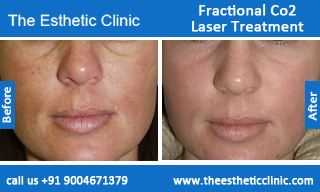 Fractional-Co2-Laser-treatment-before-after-photos-mumbai-india-1 (3)