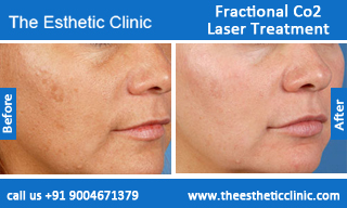 Fractional-Co2-Laser-treatment-before-after-photos-mumbai-india-1 (5)