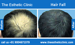 Hair-Fall-before-after-photos-mumbai-india-1 (2)