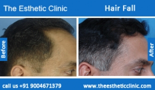 Hair-Fall-before-after-photos-mumbai-india-1 (1)