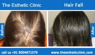 Hair-Fall-before-after-photos-mumbai-india-1 (4)