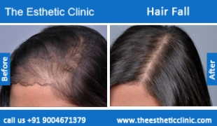 Hair-Fall-before-after-photos-mumbai-india-1 (5)