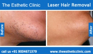 Laser-Hair-Removal-treatment-before-after-photos-mumbai-india-1 (2)