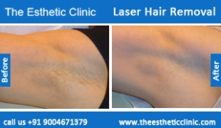 Laser-Hair-Removal-treatment-before-after-photos-mumbai-india-1 (3)