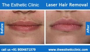 Laser-Hair-Removal-treatment-before-after-photos-mumbai-india-1 (4)