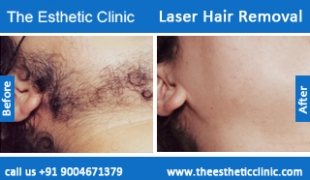 Laser-Hair-Removal-treatment-before-after-photos-mumbai-india-1 (5)