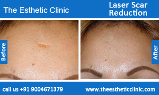 Laser-Scar-Reduction-treatment-before-after-photos-mumbai-india-1 (2)