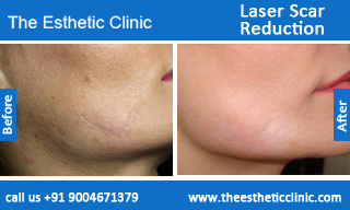 Laser-Scar-Reduction-treatment-before-after-photos-mumbai-india-1 (3)