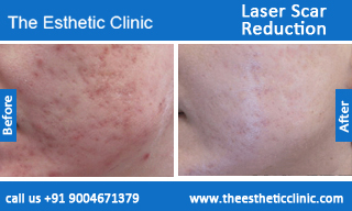 Laser-Scar-Reduction-treatment-before-after-photos-mumbai-india-1 (4)