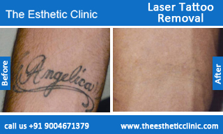 Laser-Tattoo-Removal-treatment-before-after-photos-mumbai-india-1 (3)