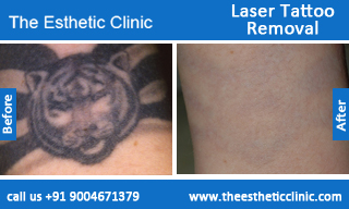 Laser-Tattoo-Removal-treatment-before-after-photos-mumbai-india-1 (4)
