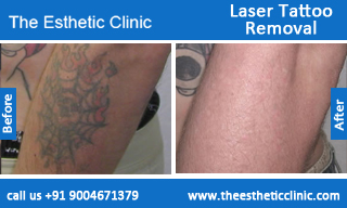 Laser-Tattoo-Removal-treatment-before-after-photos-mumbai-india-1 (5)