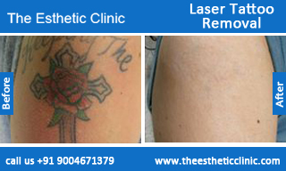 Laser-Tattoo-Removal-treatment-before-after-photos-mumbai-india-1 (6)