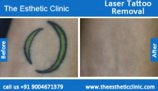 Laser-Tattoo-Removal-treatment-before-after-photos-mumbai-india-1 (1)
