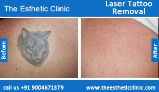 Laser-Tattoo-Removal-treatment-before-after-photos-mumbai-india-1 (2)