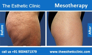 Mesotherapy-treatment-before-after-photos-mumbai-india-1 (2)