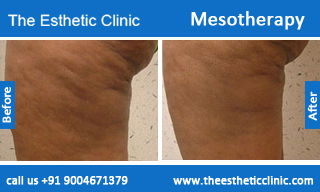 Mesotherapy-treatment-before-after-photos-mumbai-india-1 (3)
